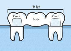 Bridge Alternative to Titanium dental implant Boundless Oral Health How To Get Rid Dental Assistant Study, Dental Hygiene School, Dental Life, Dental Art, Dental Humor, Dental Health, Dental Hygienist, Oral Health, Dental Implant Surgery