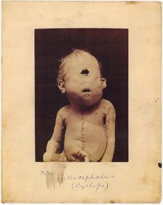 Cyclopia is a rare birth defect in which the body is unable to properly separate the two eye sockets so they remain merged as one.