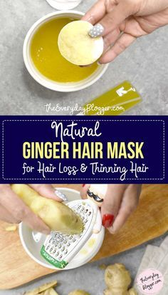 - Stimulates hair growth and if you have a scalp or dandruff problem, you should try this hair mask as it rea. - – Stimulates hair growth and if you have a scalp or dandruff problem, you should try this hair mask as it really cleanses your scalp. Ginger Oil For Hair, How To Cure Dandruff, Dandruff Remedy, Hair Mask For Dandruff, Oil For Hair Loss, Healthy Hair Tips, Hair Loss Remedies, Hair Loss Treatment, Hair Treatments