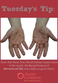This tip gives you the Banerji Protocol for HFMD, but be sure to follow through to my blog for remedies for accompanied symptoms as well. ~joetteca… | Pinterest