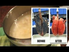 If You Smoke For More Than 5 Years, This Recipe Will Easily Clear Your L...