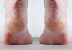 Cracked heels can be acquired due to lack of moisture and thick dead skin. Learn the natural remedies for cracked heels, so your feet look their best! Foot Soak Vinegar, Listerine Foot Soak, Heal Cracked Heels, Cracked Feet, Diy Foot Soak, Rough Heels, Dry Heels, Dry Skincare, Foot Remedies