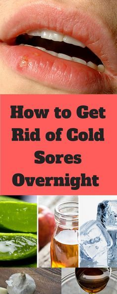 Natural remedies for treating and get riding of cold sores overnight. – – health info Natural remedies for treating and get riding of cold sores overnight. – Natural remedies for treating and get riding of cold sores overnight. Natural Cough Remedies, Natural Health Remedies, Natural Cures, Herbal Remedies, Natural Cold Sore Remedy, Cold Sore Relief, Asthma Remedies, Psoriasis Remedies, Holistic Remedies
