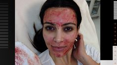 """Kim Kardashian Vampire Facial:   """"So what is this all about? Using the blood in this way is called """"platelet rich plasma"""" or PRP. To understand PRP, first you need to understand something about facial aging.  As we age, we lose volume in our face, giving us a haggard, older appearance. This is due to the loss of collagen and other growth factors. PRP has been used to treat various ailments associated with aging, such as restoring volume to the face..."""""""