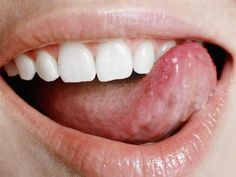 That painful sore on your tongue is actually a canker sore. These painful little sores, which are technically small ulcers, can appear anywhere in the mouth including the tongue. Cold Sore On Tongue, Sore On Tongue Remedy, Blister On Tongue, Bumps On Tongue, Tongue Sores Causes, Healing Cold Sore, Black, Essen