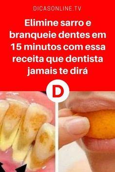 Eliminar sarro dental   Elimine sarro e branqueie dentes em 15 minutos com essa receita que dentista jamais te dirá