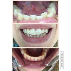 Tratamiento en progreso con ortodoncia invisible #nobracks #smile #esteticabaires #ortodonciabaires : @dravanessadhortodoncista