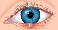 How to Get Rid of Stye? Home Remedies for Stye Treatment Blood Vessel In Eye, Blood Vessels, Eye Stye Remedies, Natural Remedies, Corneal Ulcer, Dry Eye Symptoms, Ulcer Symptoms, Natural Home Remedies, Rosacea