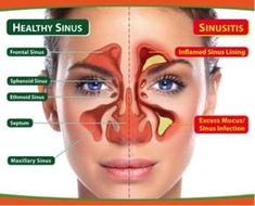 Here& the all-time best natural remedies for a sinus infection and sinus he. Here& the all-time best natural remedies for a sinus infection and sinus headache that are guaranteed to give you fast relief. Home Remedies For Sinus, Allergy Remedies, Natural Home Remedies, Herbal Remedies, Health Remedies, Flue Remedies, Sinus Infection Remedies, Weight Loss Diets, Fibromyalgia