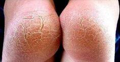 Geralmente as peles claras e sensíveis fabricam uma quantidade menor de glândulas sebáceas, que são responsáveis pela produção de gordura, e sudoríparas, que eliminam o suor.