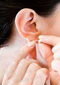 A Otoplastia é uma Cirurgia plástica que corrige imperfeições da cartilagem das orelhas, diminuindo o aspecto de abano e proporcionando aparência mais natural à estética facial. Orelhas proeminentes ou orelhas abano podem causar preocupações do paciente sobre sua aparência. A cirurgia de Otoplastia é indicada logo na infância, na fase escolar que é quando a criança é mais atingida por causa da gozação dos coleguinhas.