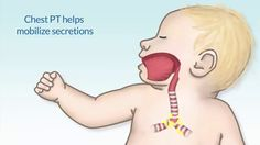"""""""Chest Physiotherapy,"""" by Susan Hamilton, MS, RN, for OPENPediatrics"""