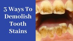 3 unusual hacks to Dramatically Remove Tooth Stains Dental Fluorosis, Teeth Stain Remover, Dental Fillings, Baking Soda And Lemon, Teeth Health, Stained Teeth, White Teeth, Natural Treatments