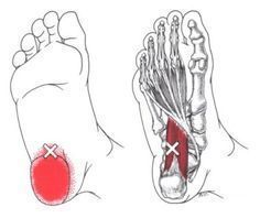 Quadratus Plantae | The Trigger Point & Referred Pain Guide More #FootPain
