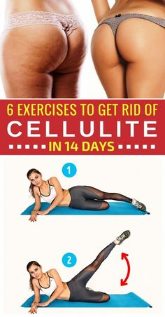 6 Exercises to Help You Get Rid of Cellulite in 14 Days #getridofcellulite, #Cellulite #Days #Exercises #getridofcellulite #Rid #CelluliteRemovalFromLegs #CelluliteRemovalOnBum #CelluliteRemovalVacuum #CelluliteRemovalProducts #CelluliteWrap Cellulite Wrap, Causes Of Cellulite, Cellulite Exercises, Cellulite Remedies, Reduce Cellulite, Anti Cellulite, Thigh Cellulite, Cellulite Workout, Fitness Motivation