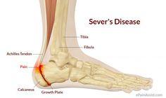 Sever's Disease