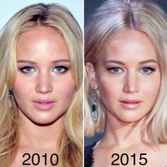 | Jennifer Lawrence did mention that she had a nose job done, not for cosmetic purposes but more for correction purposes (a deviated septum). Her old nose used to look rounder and more bulbous. After the nose job, her nose looks smaller and more pointed. The nose now sits well balanced with the rest of her facial features. |
