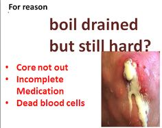 boils drained but still hard, here are the top reasons, it is either, the core of the boil is yet out, you starting medications and stops or the area is just full of dead blood cells Boil Remedies, Skin Care Remedies, Natural Remedies, Drawing Salve For Boils, Armpit Boil, Essential Oil For Boils, Boils On Buttocks, Health, Dekoration