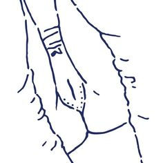 Nacho Casanova #erotic #eroticart #erotique #erotismo #erotism #art #artwork #drawing #nudeart #lineart #sexydrawing #eroticdrawing #line #ink #ilustracionerotica #minimal #nachocasanova #illustration #eroticillustration #picame #nakidmag #aoterotica #pantiefetish #knickers #sugastaaar #panties #vagina #vulva #pussy #socks