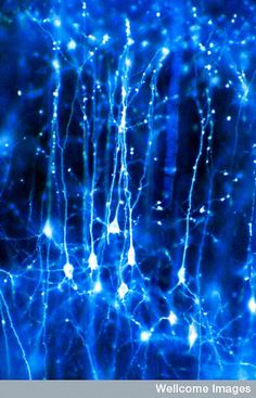 Stars? Nope, they're brain neurons talking to each other !!!