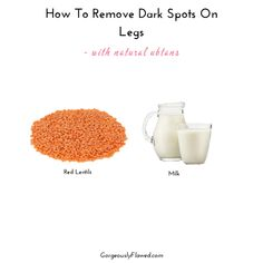 How To Remove Dark Spots On Legs - with natural ubtans Dark Spots Under Armpits, Dark Spots On Legs, Face Scrub Homemade, Homemade Skin Care, Remove Scars On Legs, Leg Scars, Dark Circle Cream, Dark Circle Remedies, Sugar Scrub For Face