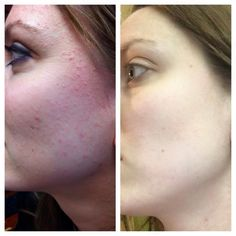 These are great results. I even like how my skin is now. #greatskin #lessbreakouts #Nerium http://nerium.com/shop/kebbert