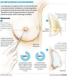 Descubre cómo saber si eres candidata a realizarte una Mastectomía.