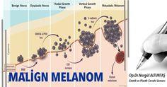 http://kocaeliestetikcerrahi.blogspot.com.tr/2016/03/malign-melanoma-nedir.html