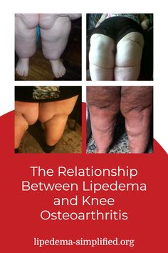 Raeann is a keto and fasting coach with Lipedema Simplified and has had incredible success managing her lipedema and other comorbidities with a combination of keto and fasting. In this excerpt, she talks about how her weight and lipedema resulted in the degeneration of her knee joints. She discusses Dr. Stutz's theory about the relationship between lipedema and knee osteoarthritis. Knee Osteoarthritis, Theory, Keto, Success, The Incredibles, Relationship, Health, Life, Thigh