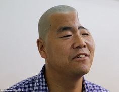 After falling down three floors of his home inXi'an, Shaanxi province, in north west China, Hu damaged his brain, causing blindess in his left eye, double vision and leaving him unable to speak or write
