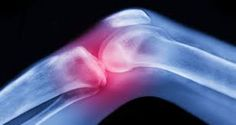 Common sign & Symptoms of Arthritis:  swelling, stiffness, warmth and redness in joint.  #knee_Joint_Replacement #Arthritis  See More : http://kneejointreplacement.in/arthritis.php