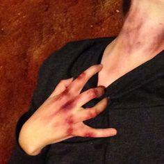 bruises | Tumblr
