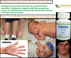 Ichthyosis treatment by Itchycal natural herbal remedies at herbal care products. Symptoms for genetic skin disorders. Causes of dead skin cells.
