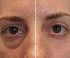 Simple Method to Remove Eye bags