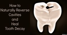 Naturally Reverse and Heal Tooth Decay - with toothpaste recipe and oil pulling