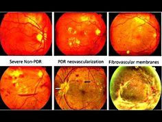 diagram corneal ulcers cotton wool spots vs hard exudates google search  cotton wool spots vs hard exudates google search