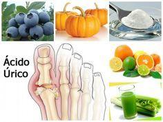 alimentos que afectan el acido urico rodilla acido urico rinon deposito acido urico bocarbonato