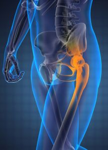 Orthopedic surgeon, Dr. Robert Zann, of Boynton Beach, Florida, is seeing many patients who suffered serious complications, all stemming from Stryker hip replacements that were recalled last year.