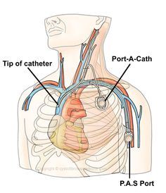 Port a Cath Placement | Venous Access And Ports