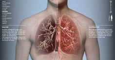 Die interaktive Seite Tobacco Body / Tabakkörper der finnischen Krebsgesellschaft zeigt anschaulich die Auswirkungen des Rauchens auf den menschlichen Körper. Stress, Watercolor Tattoo, Tattoos, Lung Cancer, Bad Breath, Human Body, Slime, Smoking, Biology