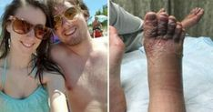Couple Noticed Their Feet After Normal Walk On Beach, Doctors Refused To Help Urban Legends, Beach Walk, Punta Cana, My Face Book, Sounds Like, Romantic Travel, Walk On, Cosmopolitan, Nice View