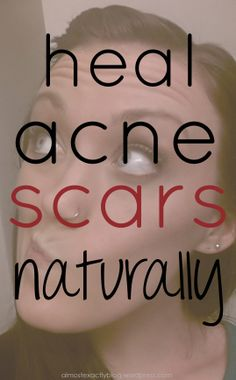 heal acne scars naturally