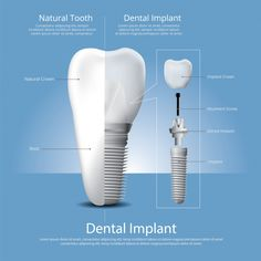 Here is some interesting information regarding dental implants. Call us at if you have any questions or would like to book your free dental implants consultation. Check out our short video by Dr. Alexandra explaining dental implants in details. Best Dental Implants, Teeth Implants, Dental Health, Dental Care, Oral Health, Dental Photography, Human Teeth, Dental Bridge