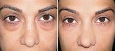 baking-soda-and-turmeric-golden-mix-for-removing-eye-bags-dark-circles