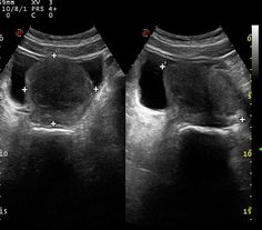 Benign prostatic hypertrophy (BPH) is an extremely common condition in elderly men and is a major cause of outflow obstruction.  Ultrasound has become the standard first line investigation after the urologist's finger. Typically there is an increase in volume of the prostate with a calculated volume exceeding 30 cc ((A x B x C)/2).  http://radiopaedia.org/articles/benign-prostatic-hypertrophy