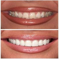 Want to change the appearance of one or more teeth veneers are thin ways to care teeth with crowns solutioingenieria Images