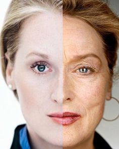 #MerylStreep over 26 years. Left side photo was taken in 1979, right side in 2006. I personally think this is the definition of #aginggracefully. The most prominent signs of aging can be seen in her eyes - a slight droop of the eyebrow, crepey upper eyelid, and wrinkles around the eyes. Yes, she has forehead wrinkles and lines around the mouth but even people in their 20s can have those lines. For a 66 year old woman, we think she looks beautiful, powerful, and in charge of her skin. #LASATT