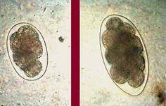 Pequeno atlas de parasitologia Les Parasites, Medicine, Pictures, Scientists, Eggs, Brazil, Beleza, Veterinary Medicine, Lab