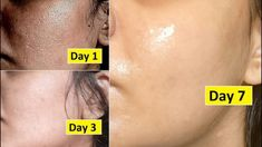 This skin repair routine helps you to achieve beautiful skin by repairing your skin. It helps to close large open pores, remove dark spots, anti aging, tight. Anti Aging Cream, Anti Aging Skin Care, Banana Facial, Homemade Facial Mask, Glass Skin, Toner For Face, Sagging Skin, Dull Skin, Tips Belleza