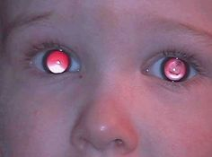 Red Reflex in Infants cong  cataract left eye